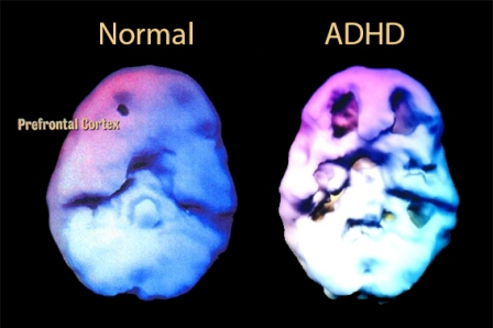 Facts about ADHD - Brain Structure