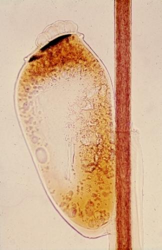 Head Lice Eggs