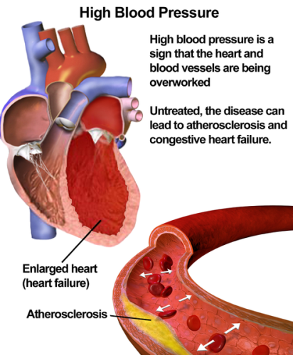 Facts about High Blood Pressure