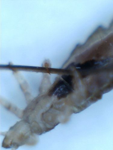 Head Lice Pic