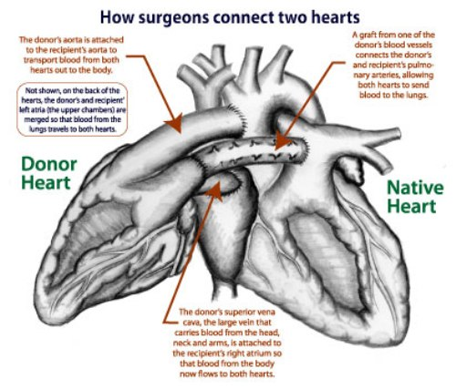 facts about heart transplant