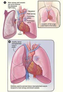 heart transplant pic