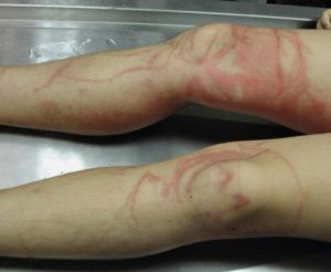 Sting victim of Box Jellyfish