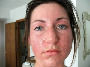 Side effect of methadone (excessive sweating)