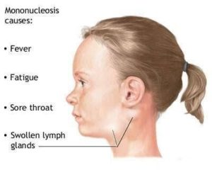 Mononucleosis symptoms
