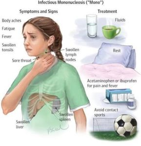 The treatment of Mononucleosis