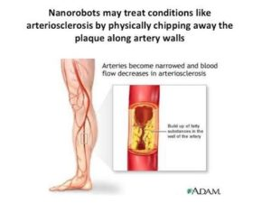 The use of nanobots in medicine